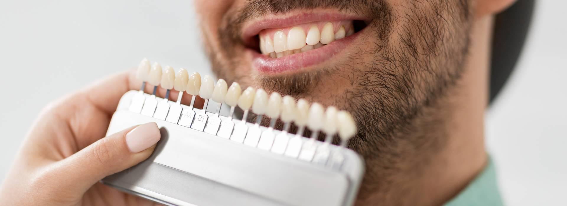 What Are Custom Teeth Whitening Trays